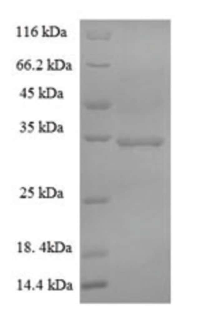 enQuireBio™ Recombinant Human S-phase kinase-associated protein 1 50μg enQuireBio™ Recombinant Human S-phase kinase-associated protein 1