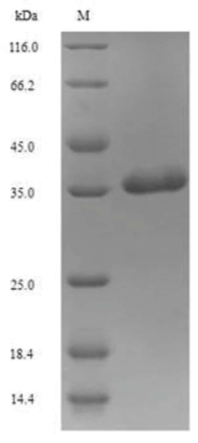 enQuireBio™Recombinant Human Excitatory amino acid transporter 3 Protein 500μg enQuireBio™Recombinant Human Excitatory amino acid transporter 3 Protein