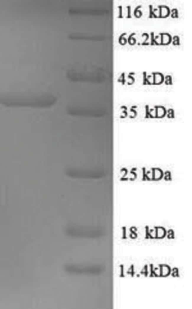 enQuireBio™Recombinant Mouse Excitatory amino acid transporter 2 Protein 200μg enQuireBio™Recombinant Mouse Excitatory amino acid transporter 2 Protein