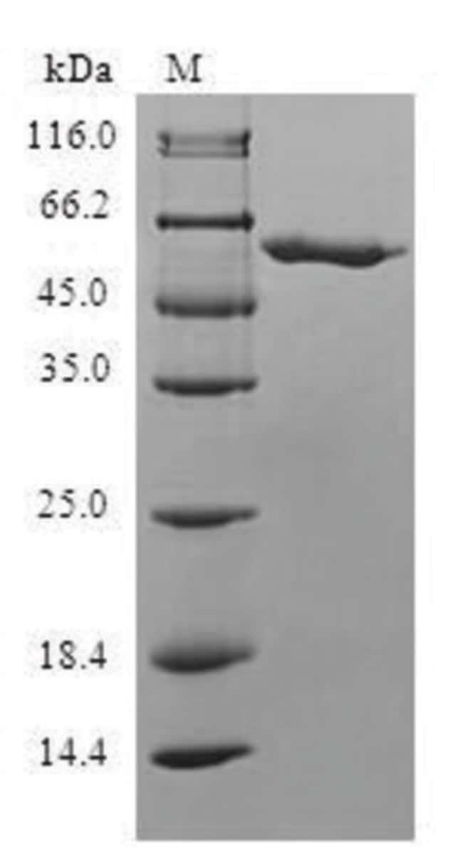 enQuireBio™Recombinant Human SLC25A20 Protein 100μg enQuireBio™Recombinant Human SLC25A20 Protein