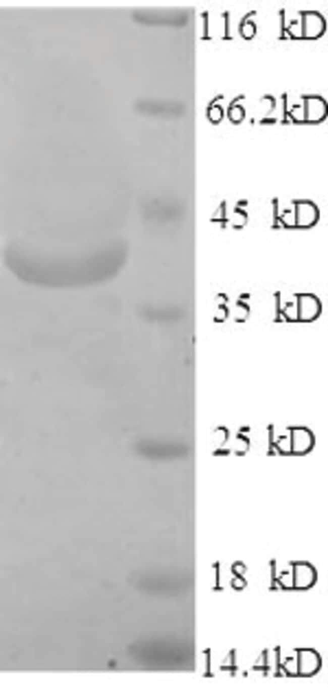 enQuireBio™Recombinant Human Very long-chain acyl-CoA synthetase Protein 50μg enQuireBio™Recombinant Human Very long-chain acyl-CoA synthetase Protein