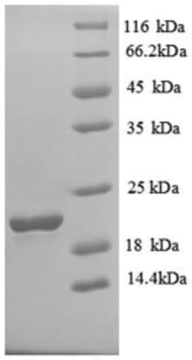 enQuireBio™ Recombinant Human Solute carrier family 41 member 2 Protein 200μg enQuireBio™ Recombinant Human Solute carrier family 41 member 2 Protein
