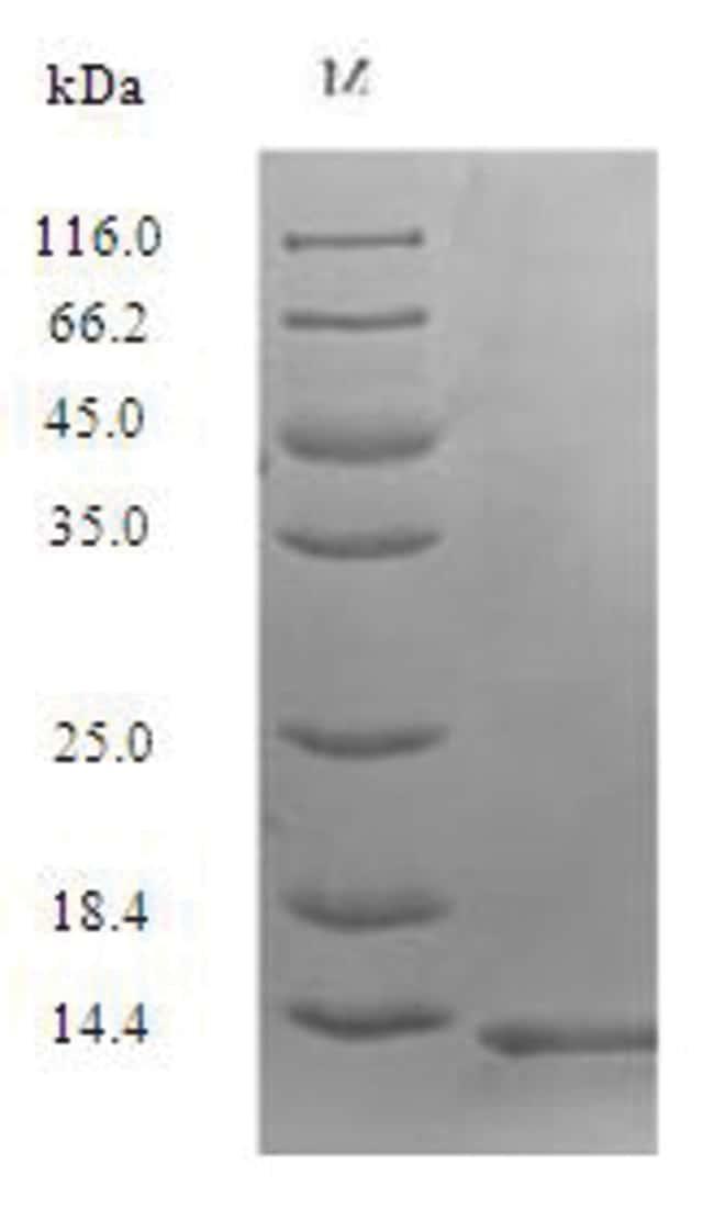 enQuireBio™Recombinant Human Secreted Ly-6 / uPAR-related protein 1 10μg enQuireBio™Recombinant Human Secreted Ly-6 / uPAR-related protein 1