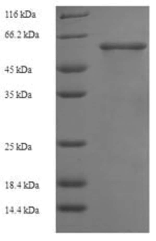 enQuireBio™Recombinant Human Smad3 Protein 500μg enQuireBio™Recombinant Human Smad3 Protein
