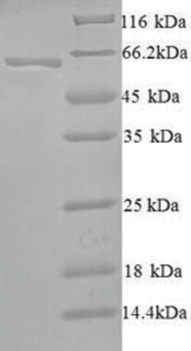 enQuireBio™Recombinant Human SMARCA2 Protein 200μg enQuireBio™Recombinant Human SMARCA2 Protein