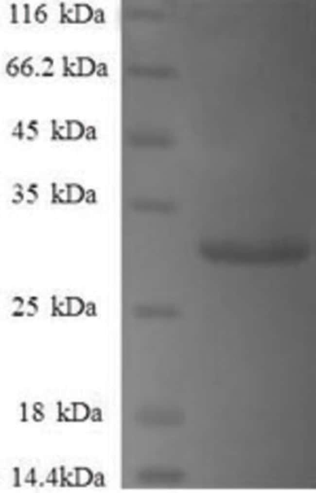 enQuireBio™Recombinant Human Gamma-synuclein Protein 200μg enQuireBio™Recombinant Human Gamma-synuclein Protein