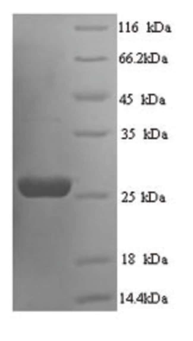 enQuireBio™Recombinant Rat Suppressor of cytokine signaling 3 Protein 10μg enQuireBio™Recombinant Rat Suppressor of cytokine signaling 3 Protein