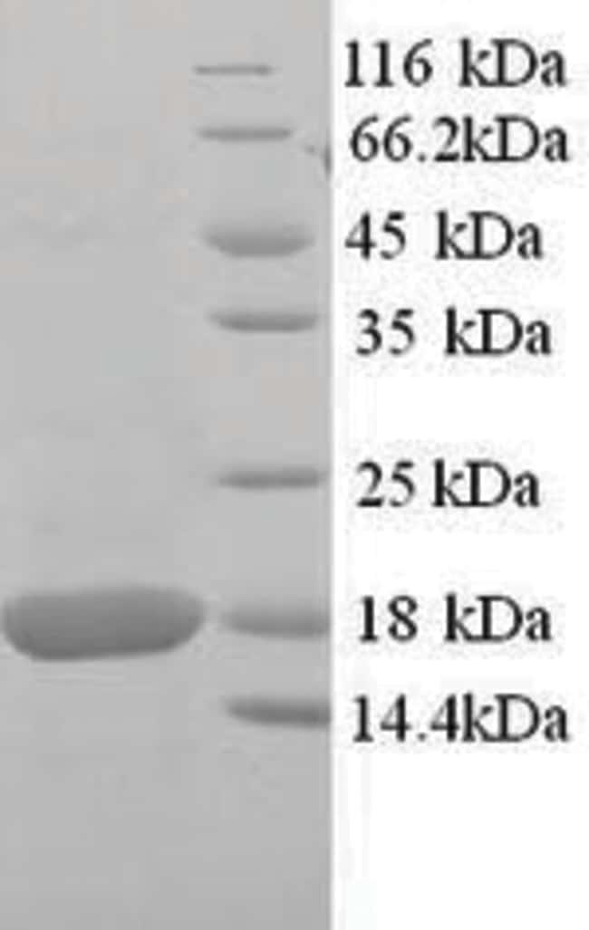 enQuireBio™Recombinant Mouse SOD1 / Superoxide Dismutase Protein 200μg enQuireBio™Recombinant Mouse SOD1 / Superoxide Dismutase Protein
