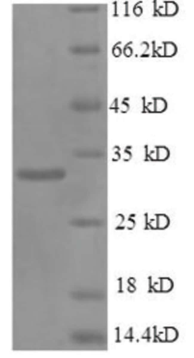 enQuireBio™Recombinant Mouse Osteopontin / SPP1 / ETA-1 Protein 500μg enQuireBio™Recombinant Mouse Osteopontin / SPP1 / ETA-1 Protein