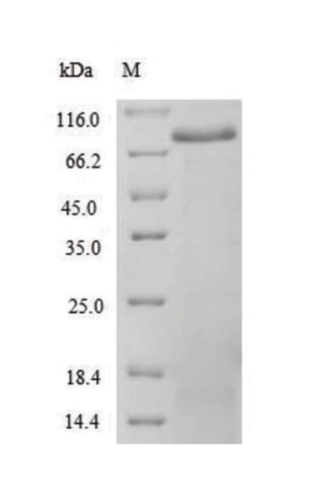 enQuireBio™Recombinant Human Spectrin alpha chain, non-erythrocytic 1 Protein 10μg enQuireBio™Recombinant Human Spectrin alpha chain, non-erythrocytic 1 Protein