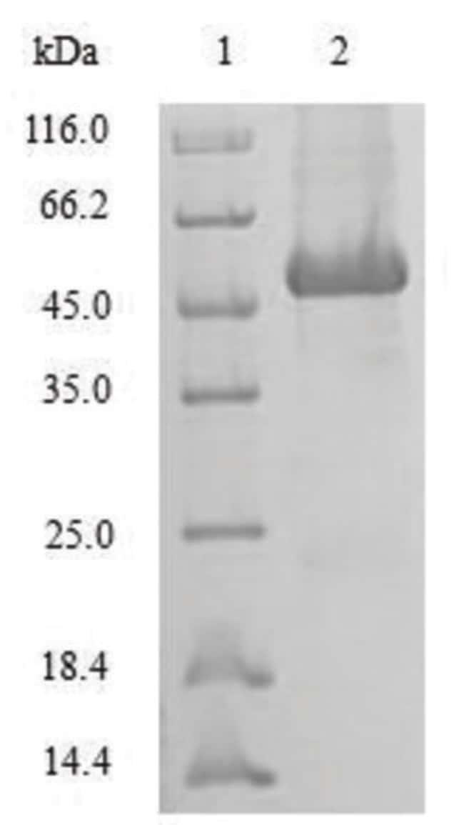 enQuireBio™Recombinant Human SRI / Sorcin Protein 200μg enQuireBio™Recombinant Human SRI / Sorcin Protein