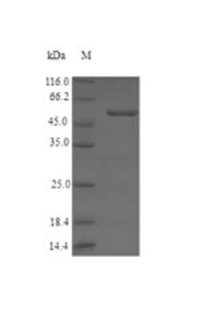 enQuireBio™Recombinant Human Serine racemase Protein 10μg enQuireBio™Recombinant Human Serine racemase Protein