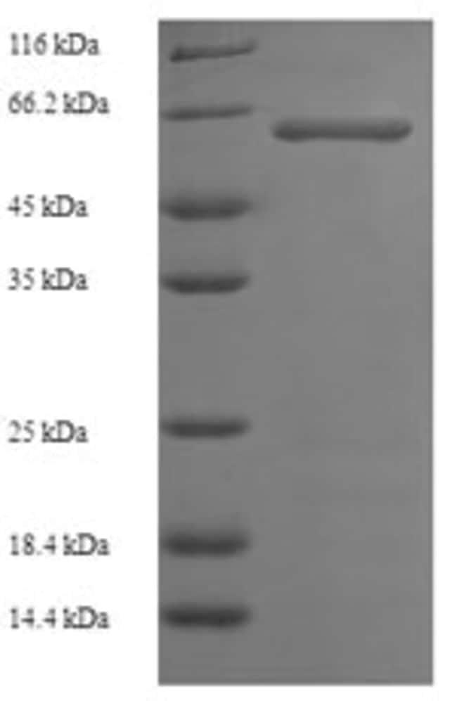 enQuireBio™Recombinant Human Serine / threonine-protein kinase 25 Protein 100μg enQuireBio™Recombinant Human Serine / threonine-protein kinase 25 Protein