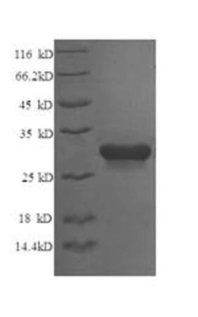 enQuireBio™ Recombinant Chicken Syntaxin-6 Protein: Proteins A-Z Proteins