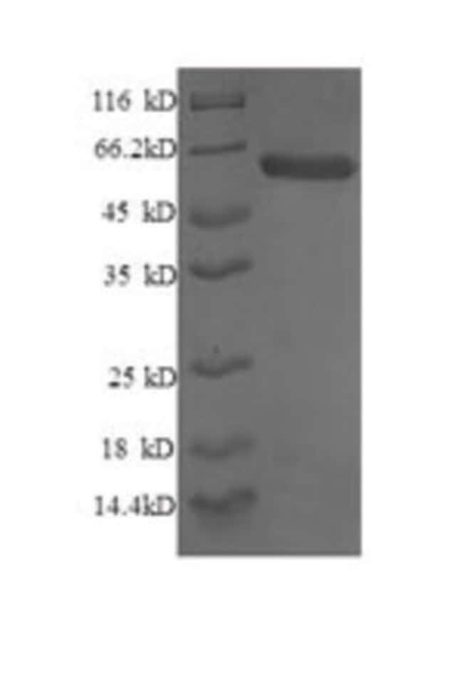 enQuireBio™ Recombinant Human Syntaxin-6 Protein: Proteins A-Z Proteins