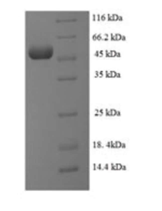 enQuireBio™ Recombinant Human SUPT3H Protein 1mg enQuireBio™ Recombinant Human SUPT3H Protein