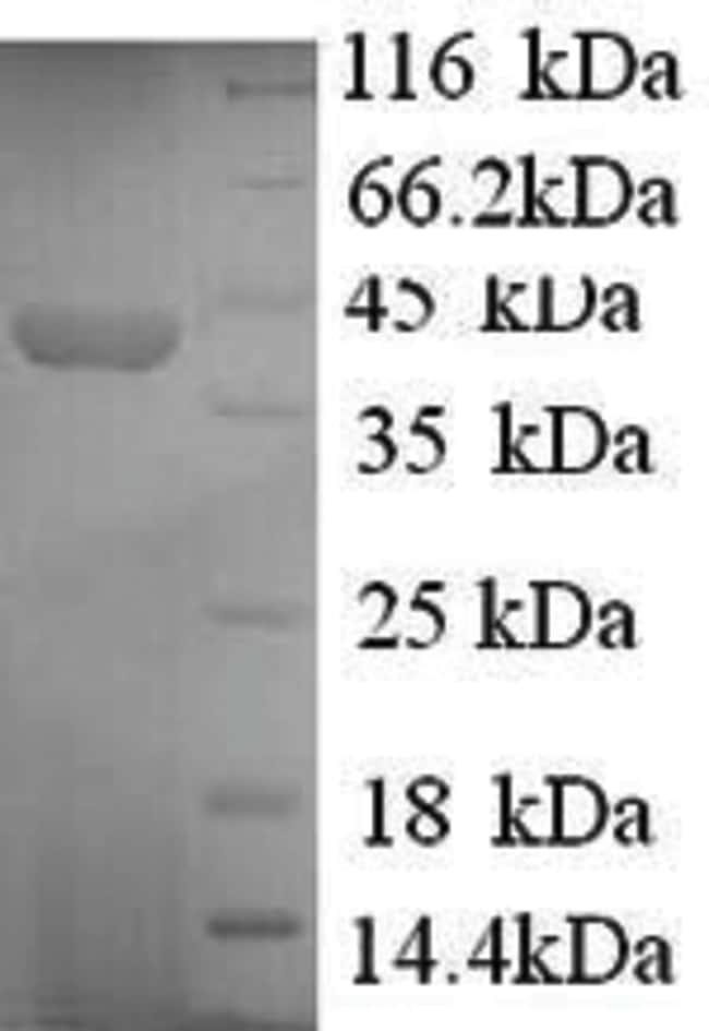 enQuireBio™Recombinant Human Synapsin-1 Protein 50μg enQuireBio™Recombinant Human Synapsin-1 Protein