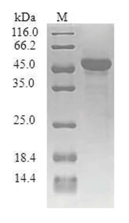enQuireBio™Recombinant Human Synaptogyrin-1 Protein 200μg enQuireBio™Recombinant Human Synaptogyrin-1 Protein