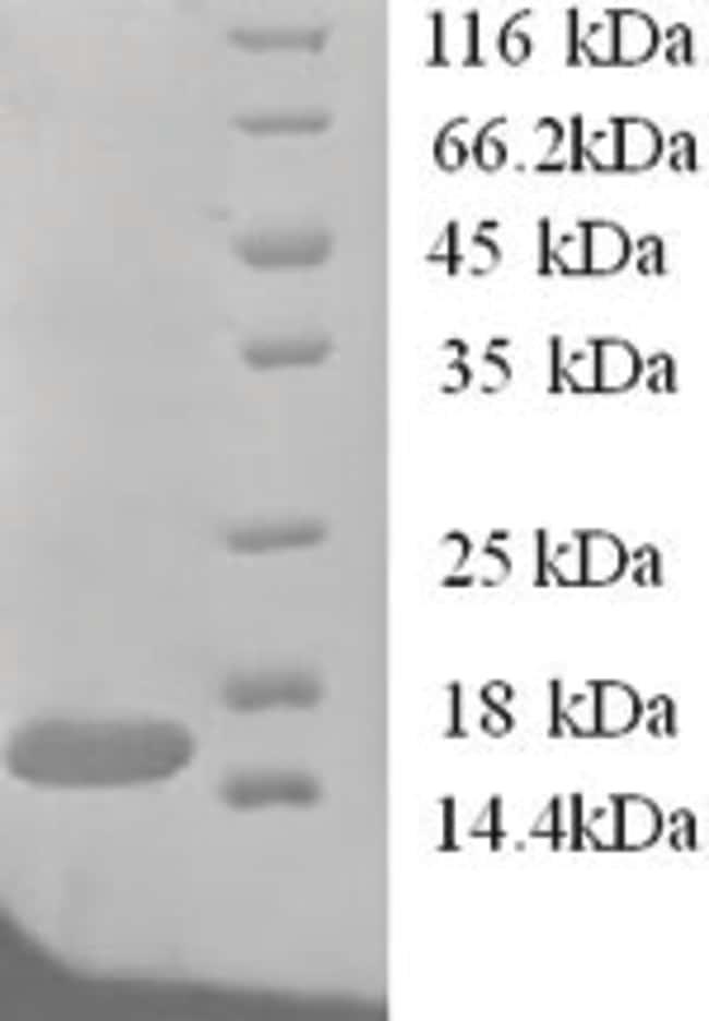 enQuireBio™Recombinant Human TANK Protein 200μg enQuireBio™Recombinant Human TANK Protein