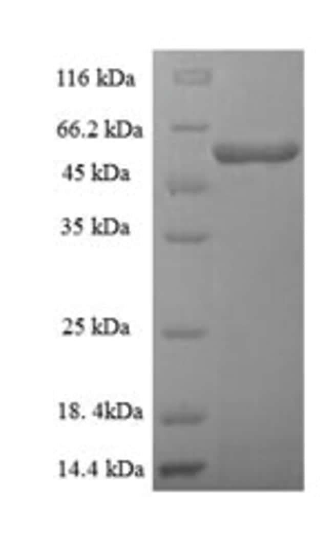 enQuireBio™Recombinant Human Threonine--tRNA ligase, mitochondrial Protein 500μg enQuireBio™Recombinant Human Threonine--tRNA ligase, mitochondrial Protein