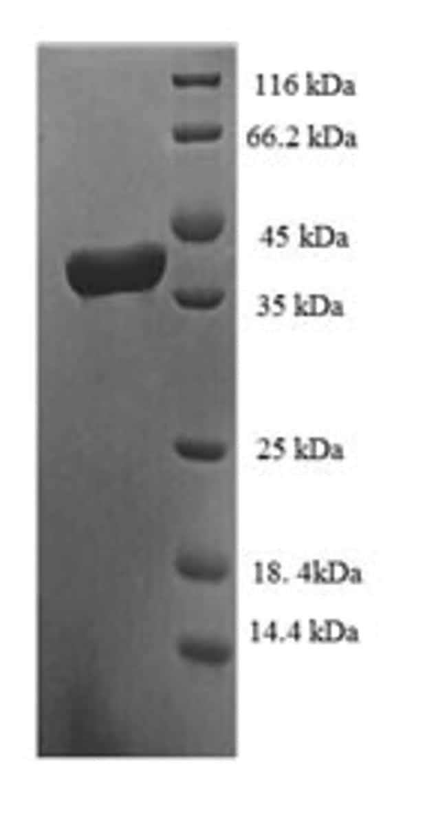 enQuireBio™Recombinant Human TCEB1 Protein 1mg enQuireBio™Recombinant Human TCEB1 Protein