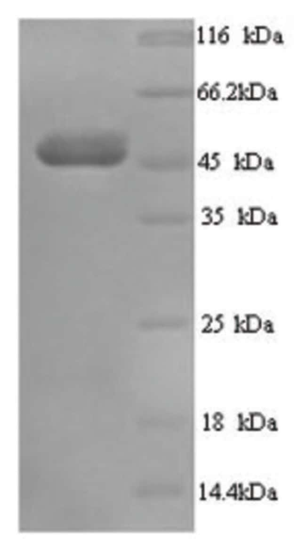 enQuireBio™Recombinant Human Transcobalamin-1 Protein 10μg enQuireBio™Recombinant Human Transcobalamin-1 Protein