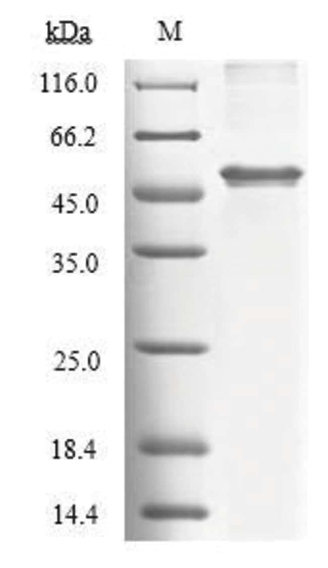 enQuireBio™Recombinant Human Tryptophan 2,3-dioxygenase Protein 500μg enQuireBio™Recombinant Human Tryptophan 2,3-dioxygenase Protein