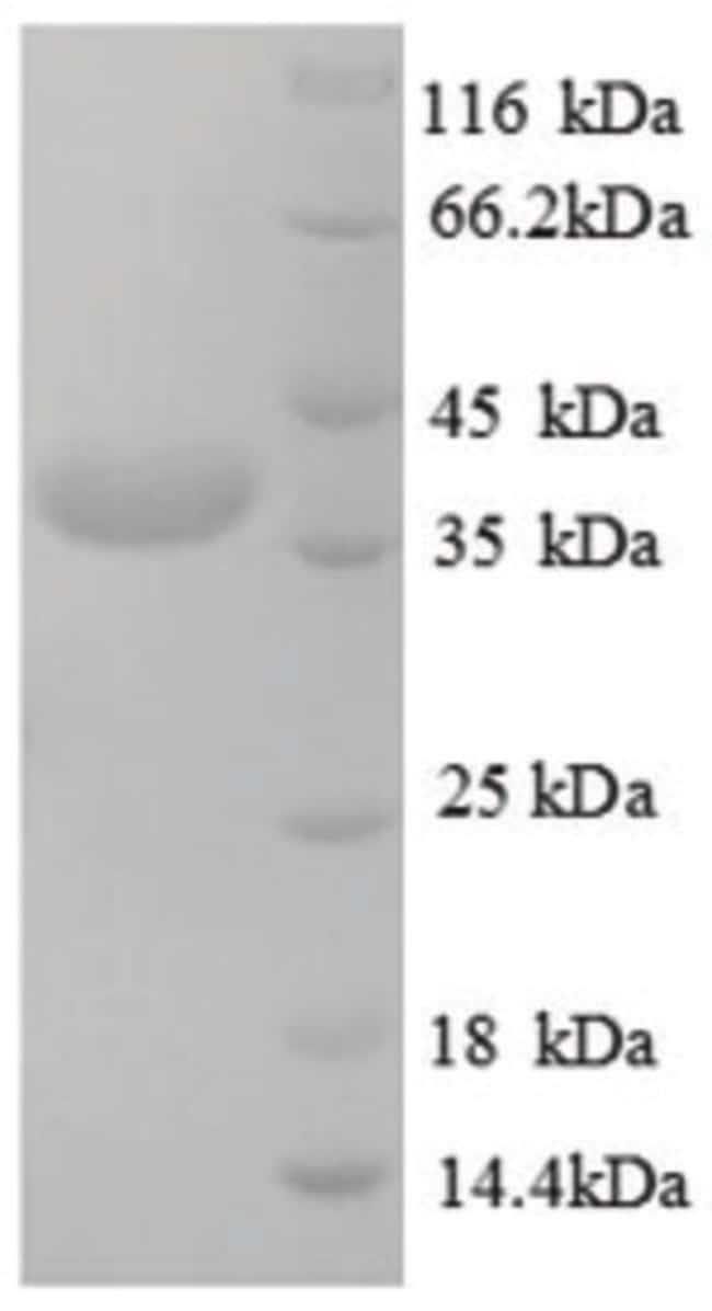 enQuireBio™ Recombinant Human Testis-expressed sequence 12 Protein 10μg enQuireBio™ Recombinant Human Testis-expressed sequence 12 Protein