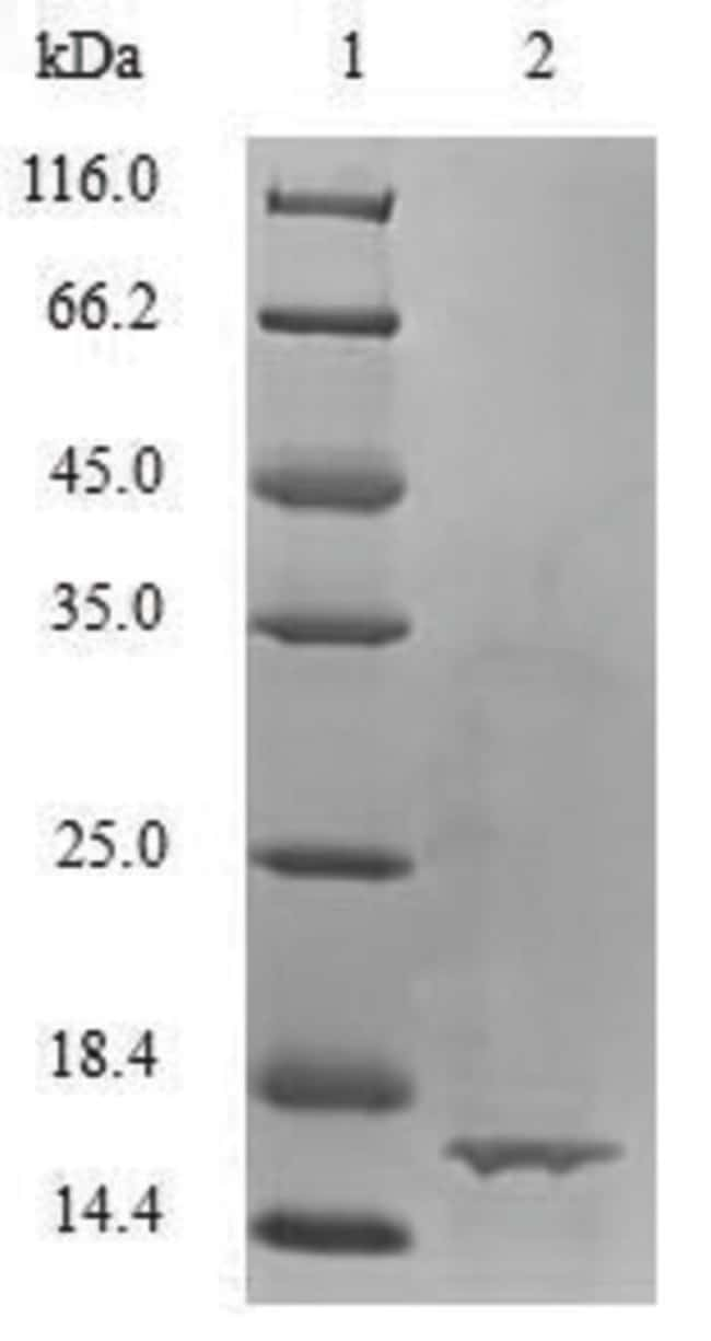 enQuireBio™Recombinant Bovine TGF-beta 1 / TGFB1 Protein 200μg enQuireBio™Recombinant Bovine TGF-beta 1 / TGFB1 Protein