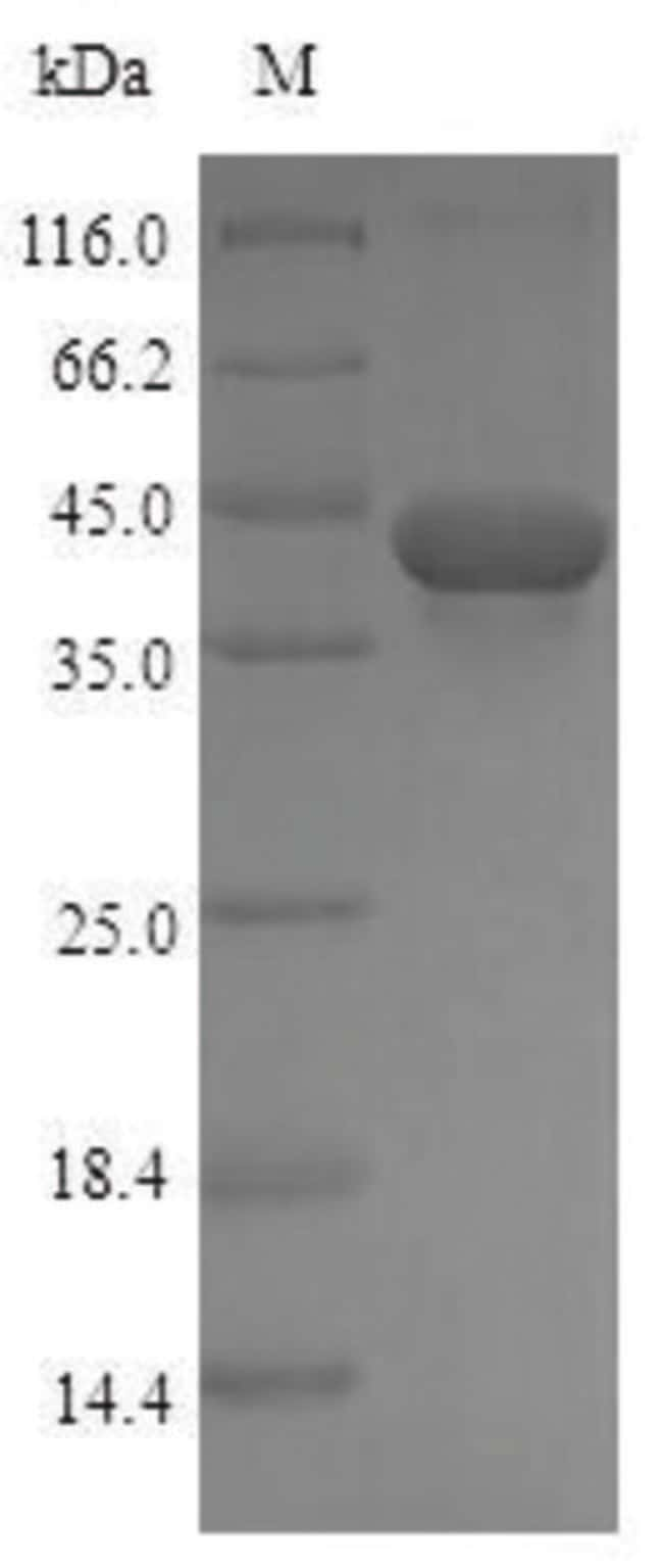 enQuireBio™ Recombinant Rat TGF-beta 1 / TGFB1 Protein 100μg enQuireBio™ Recombinant Rat TGF-beta 1 / TGFB1 Protein