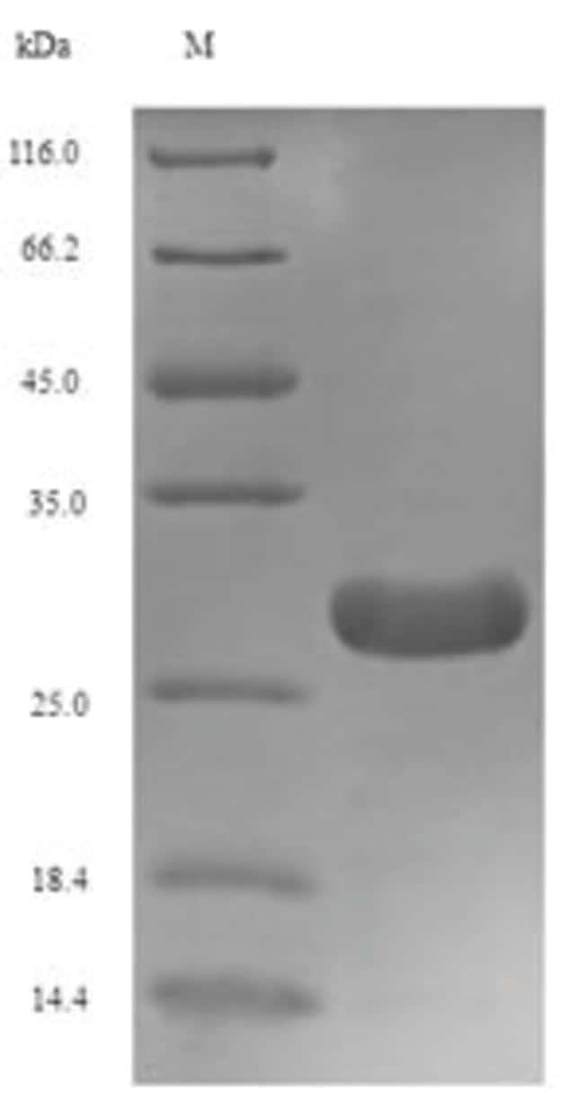 enQuireBio™Recombinant Xenopus TGF-beta 1 / TGFB1 Protein 500μg enQuireBio™Recombinant Xenopus TGF-beta 1 / TGFB1 Protein