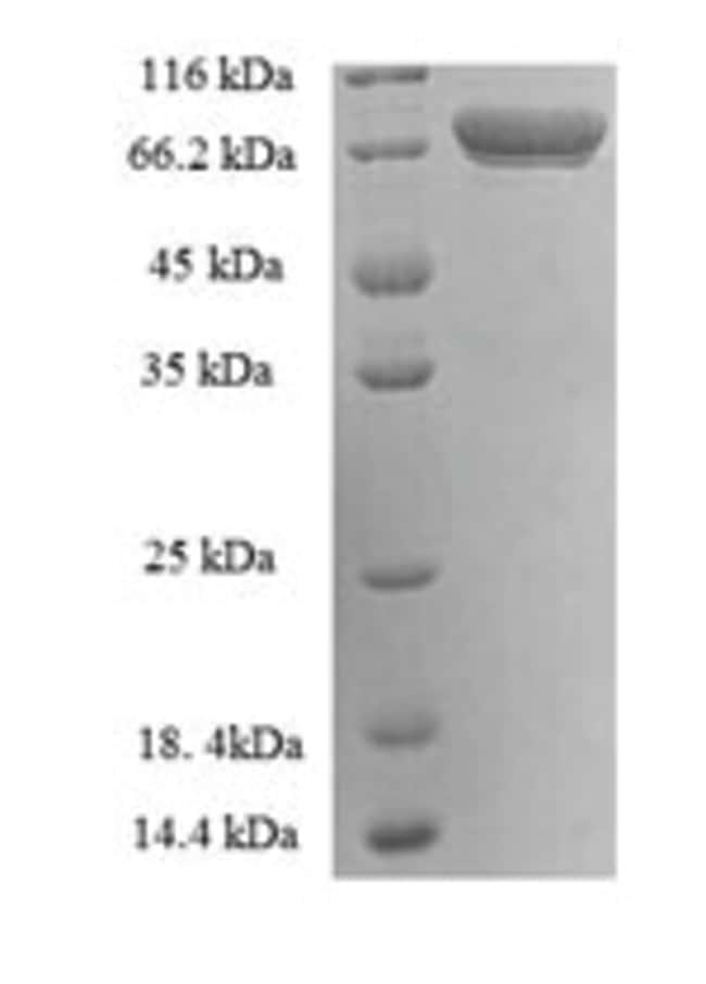 enQuireBio™Recombinant Human Transglutaminase II Protein 50μg enQuireBio™Recombinant Human Transglutaminase II Protein