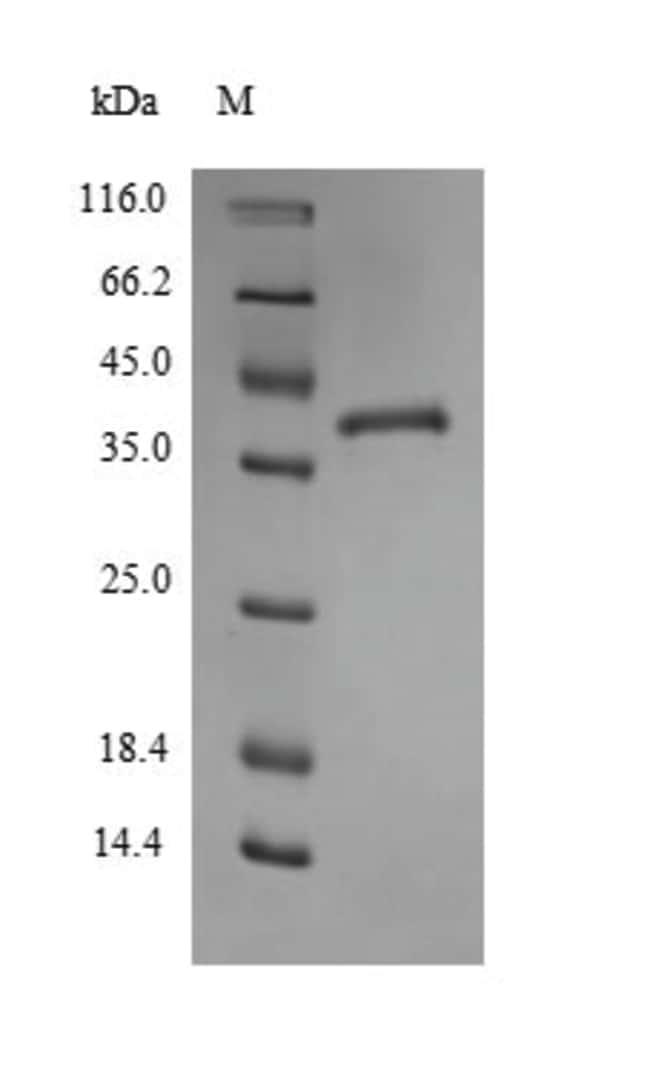 enQuireBio™Recombinant Mouse Thrombospondin-1 Protein 50μg enQuireBio™Recombinant Mouse Thrombospondin-1 Protein
