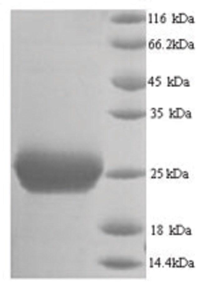 enQuireBio™Recombinant Mouse Thrombospondin-2 Protein 1mg enQuireBio™Recombinant Mouse Thrombospondin-2 Protein