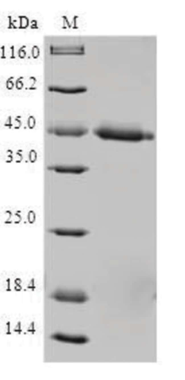 enQuireBio™ Recombinant Human TIMM17A Protein 10μg enQuireBio™ Recombinant Human TIMM17A Protein
