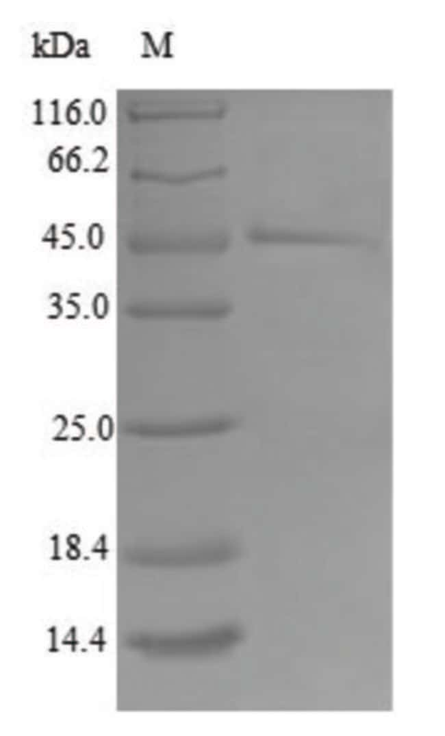 enQuireBio™ Recombinant Human TIMM17B Protein 500μg enQuireBio™ Recombinant Human TIMM17B Protein