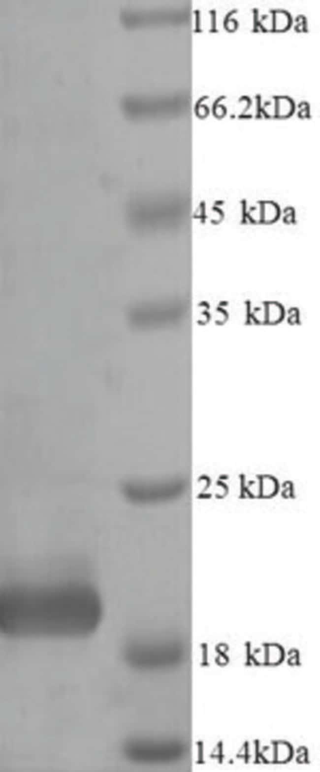 enQuireBio™Recombinant Bovine Metalloproteinase inhibitor 4 Protein 50μg enQuireBio™Recombinant Bovine Metalloproteinase inhibitor 4 Protein