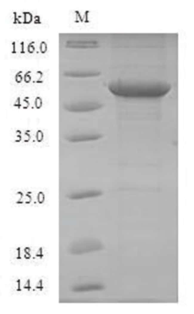 enQuireBio™Recombinant Mouse Toll-like receptor 7 Protein 500μg enQuireBio™Recombinant Mouse Toll-like receptor 7 Protein