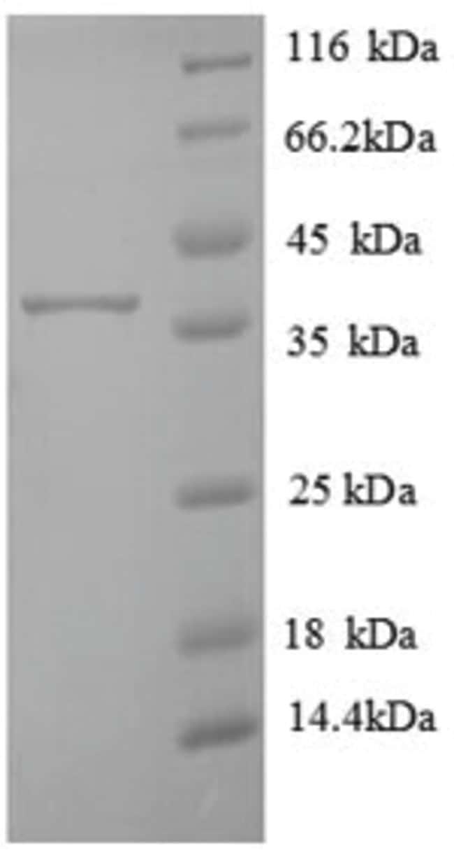 enQuireBio™Recombinant Human Transmembrane protein 14B Protein 10μg enQuireBio™Recombinant Human Transmembrane protein 14B Protein