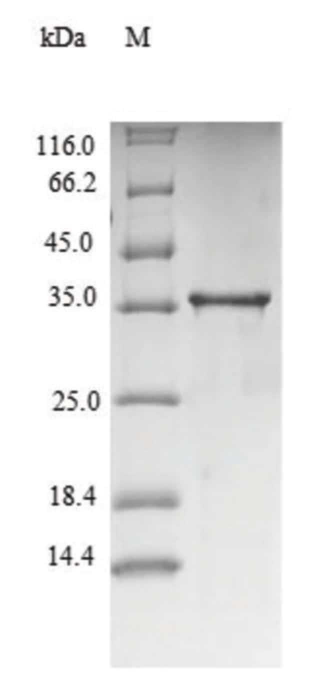 enQuireBio™Recombinant Mouse TNF-alpha Protein 500μg enQuireBio™Recombinant Mouse TNF-alpha Protein