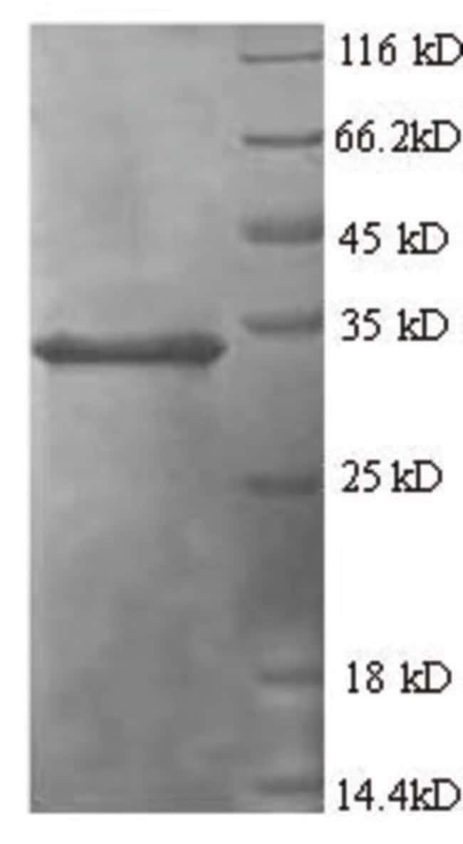 enQuireBio™Recombinant Human TNFAIP6 Protein 10μg enQuireBio™Recombinant Human TNFAIP6 Protein