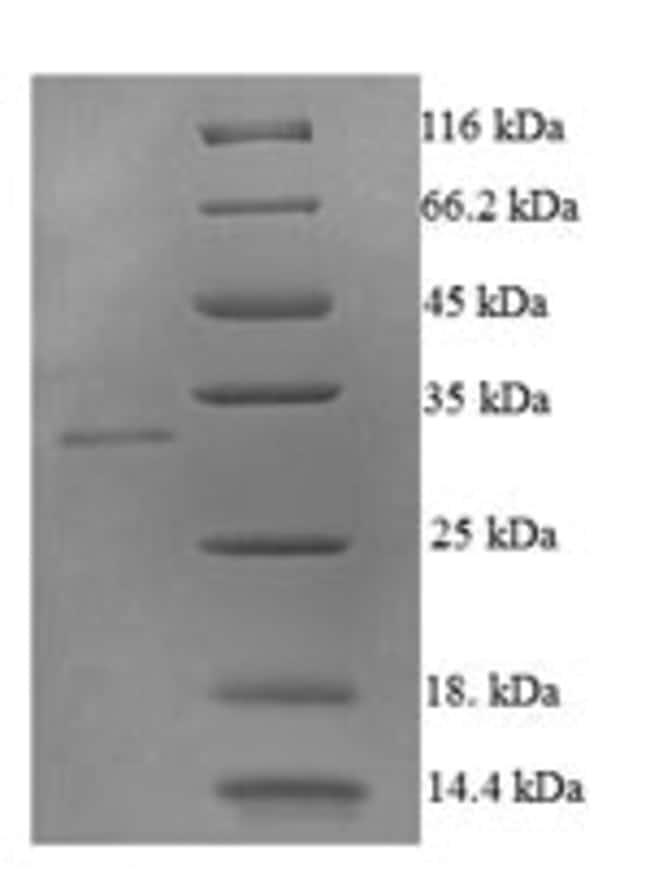 enQuireBio™Recombinant Human TNFSF10 / TRAIL / APO-2L Protein 1mg enQuireBio™Recombinant Human TNFSF10 / TRAIL / APO-2L Protein