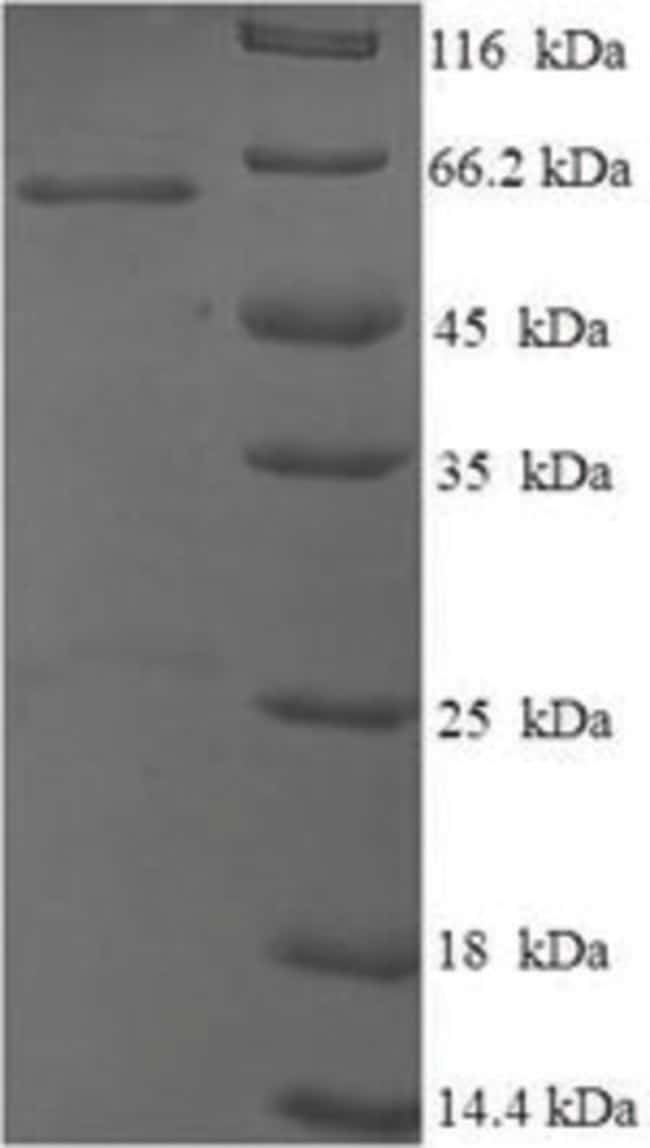 enQuireBio™ Recombinant Mouse p53 / TP53 Protein 10μg enQuireBio™ Recombinant Mouse p53 / TP53 Protein