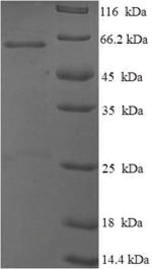 enQuireBio™Recombinant Mouse p53 / TP53 Protein 10μg enQuireBio™Recombinant Mouse p53 / TP53 Protein
