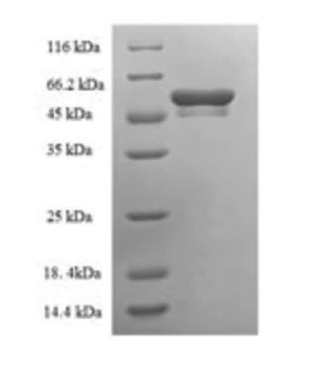 enQuireBio™Recombinant Mouse Tryptase beta-2 Protein 100μg enQuireBio™Recombinant Mouse Tryptase beta-2 Protein