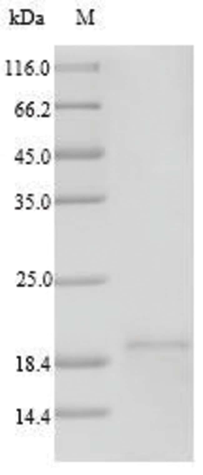 enQuireBio™Recombinant Human TSLP Protein 100μg enQuireBio™Recombinant Human TSLP Protein