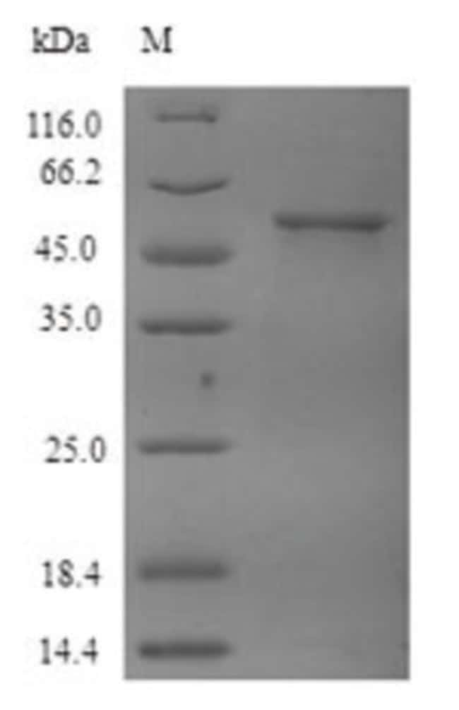 enQuireBio™Recombinant Human Tubulin beta-4A chain Protein 500μg enQuireBio™Recombinant Human Tubulin beta-4A chain Protein