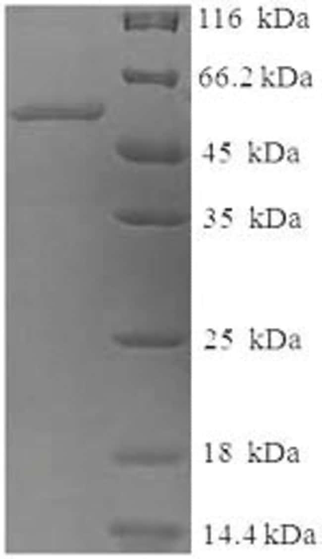 enQuireBio™Recombinant Human Tyrosinase Protein 500μg enQuireBio™Recombinant Human Tyrosinase Protein