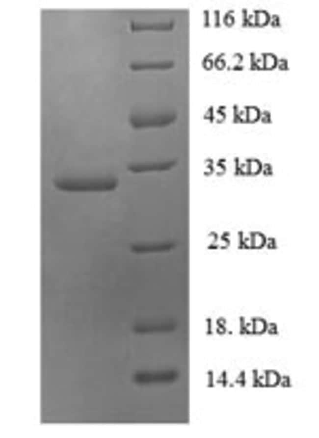 enQuireBio™Recombinant Human Ubiquitin-conjugating enzyme E2 variant 2 Protein 500μg enQuireBio™Recombinant Human Ubiquitin-conjugating enzyme E2 variant 2 Protein