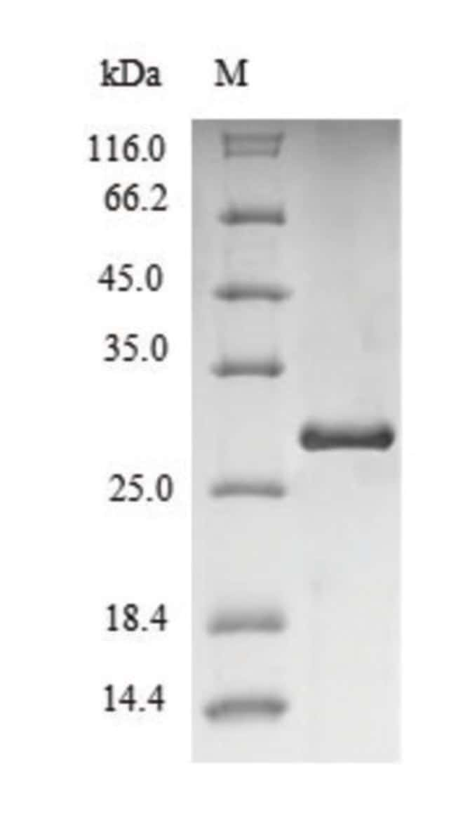 enQuireBio™Recombinant Human Immunoglobulin iota chain Protein 1mg enQuireBio™Recombinant Human Immunoglobulin iota chain Protein
